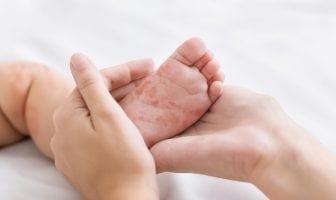 vitamina-a-a-nutricao-no-combate-as-sequelas-do-sarampo