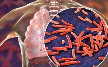 tuberculose-novo-medicamento-reduz-tempo-de-tratamento-pela-metade