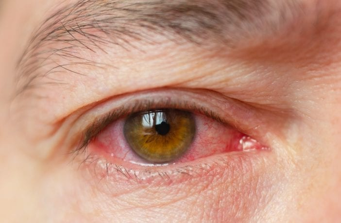 primavera-contribui-para-aumento-de-casos-de-conjuntivite-alergica