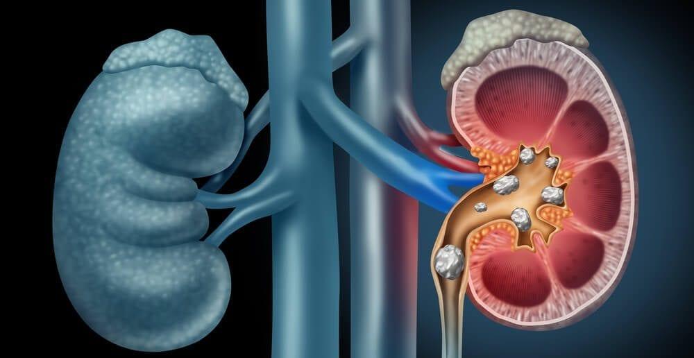 pedra nos rins e cólica renal