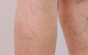 pacientes-com-covid-19-apresentam-quadros-de-trombose