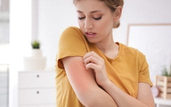 dermatite-atópica-5-coisas-que-voce-precisa-saber