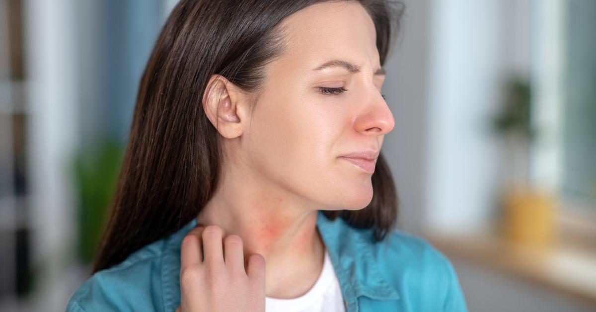alergia-alimentar-em-seis-perguntas-e-respostas