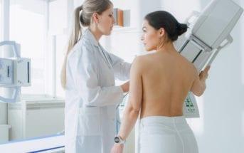 câncer-de-mama-casos