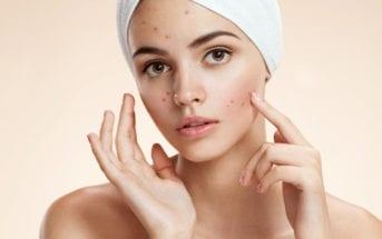 acne-na-fase-adulta