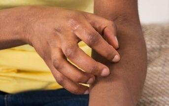 dermatite-atópica