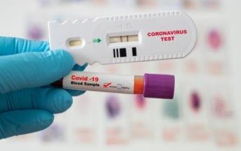 abrafarma-testes-positivo-covid