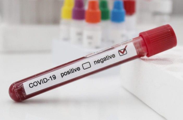 exame-negativo-covid