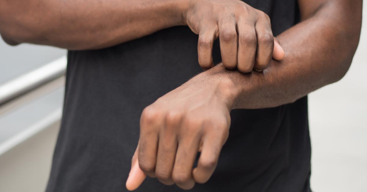 mão-coceira-dermatite-atópica