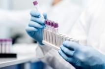 tratamentos-testes-covid