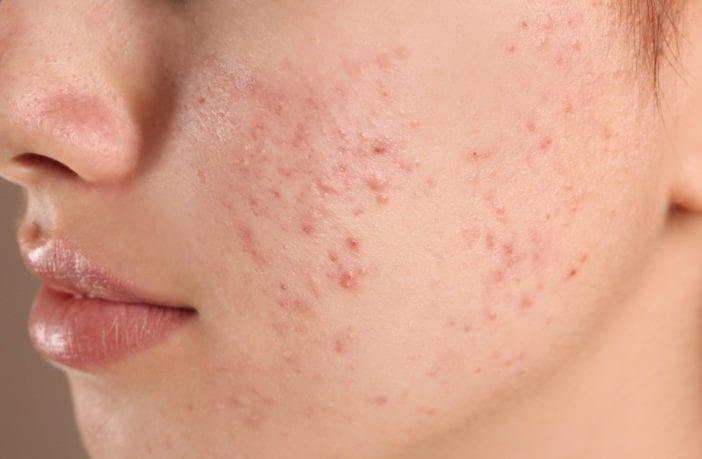acne-máscara