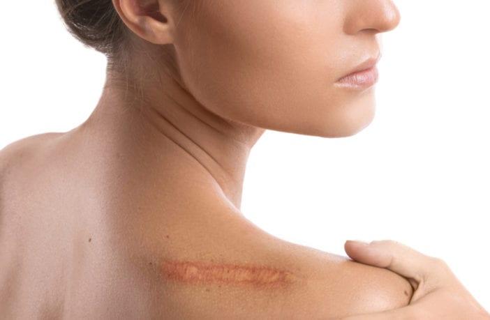 queloides-cicatrizes