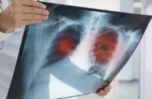 câncer-pulmão