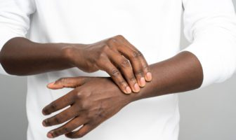 artrite-reumatóide